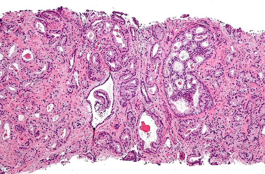 Гистология простатита зачать ребенка простатит
