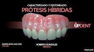 Prótesis Híbridas